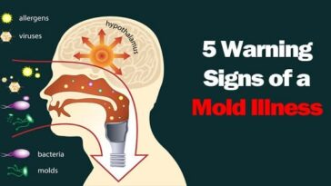 12 Symptoms of Mold Illness and How to Get Rid of Mold in Your House