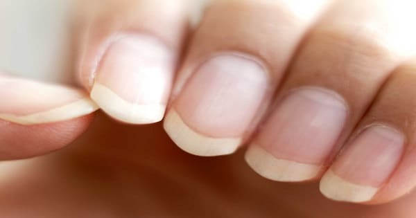 Your Fingernails Say a Lot More About Your Health